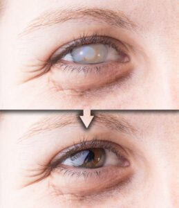 Eyes with and without cataract and corneal opacity
