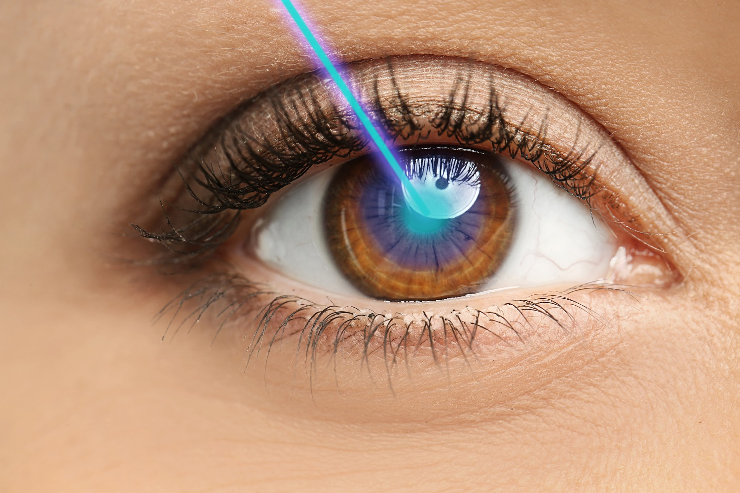 Laser and young woman, closeup of eye