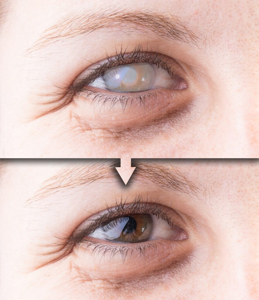 Eye with cataract and corneal opacity before and after surgery